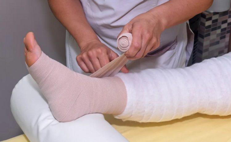 Восстановление после операции на венах
