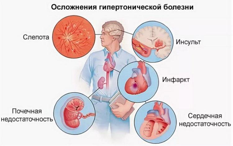Является Ли Онкология Хроническим Заболеванием